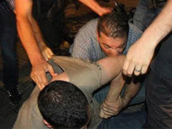 Polis göstericiyi böyle ısırdı